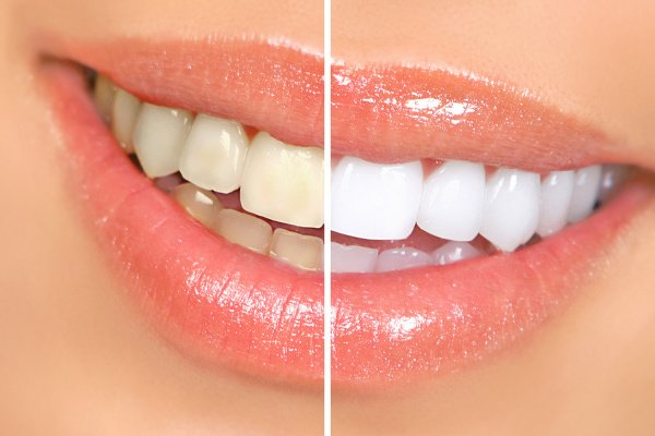 Cómo blanquear los dientes de forma natural